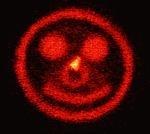 smile_laser