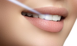 Don't Let These Myths Shy You Away From Receiving Laser Dentistry